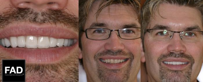 a male patient's before and after pictures
