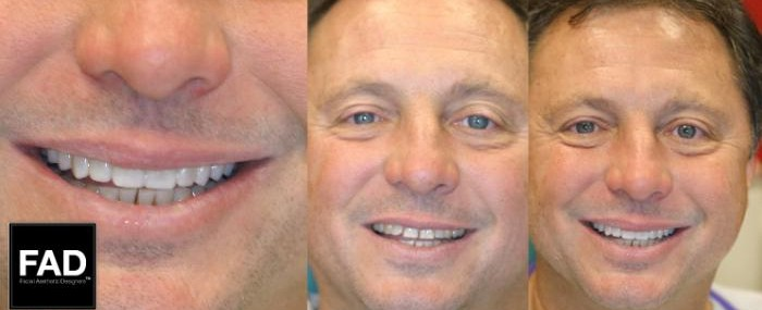 a man's before and after pictures of his smile