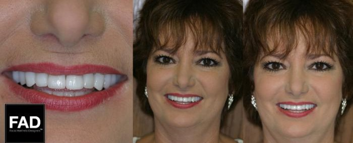 a woman's smile makeover before and after pictures