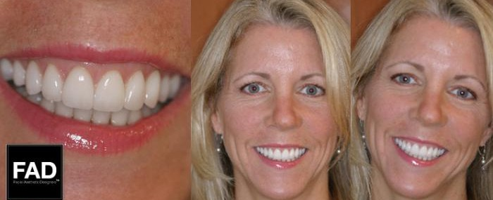 pictures of a blonde patient's smile transformation