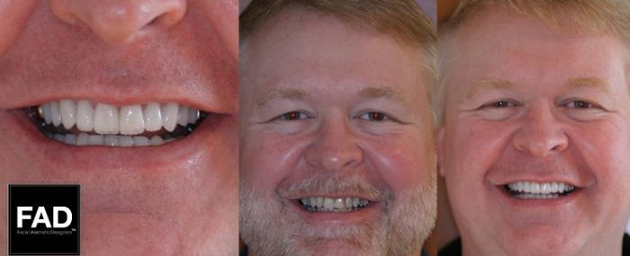 before and after pictures of a patient's smile makeover