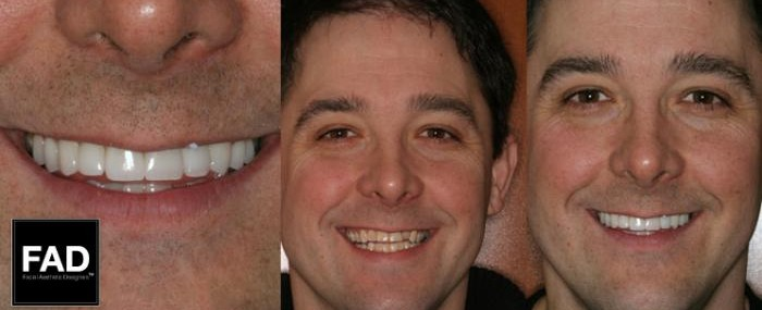 before and after pictures of a smile makeover